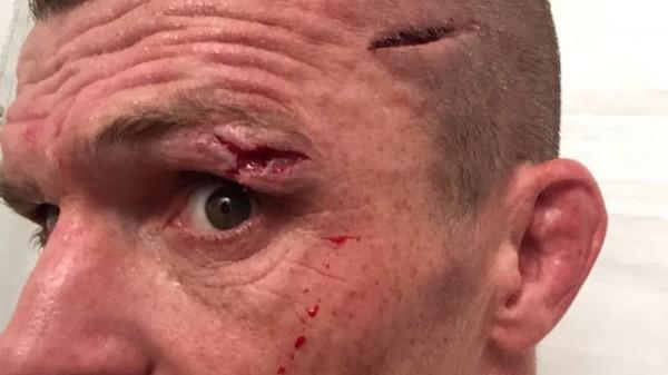 Σοκαριστικός τραυματισμός-κόψιμο για τον John Wayne Parr! (BINTEO)