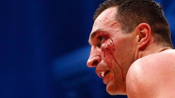 O Klitschko βλέπει δύσκολο τον Wilder για Joshua και εύκολο τον Fury