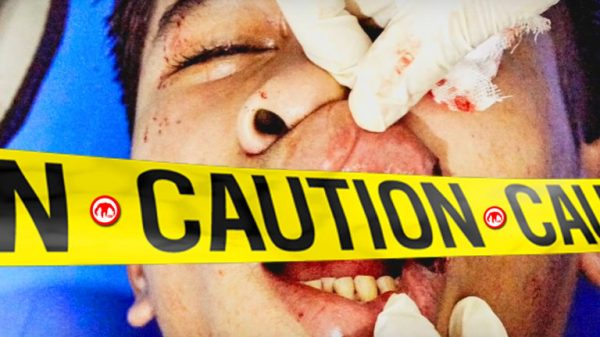 Σοκαριστικός τραυματισμός μετά από χτύπημα με αγκώνα! (ΒΙΝΤΕΟ)
